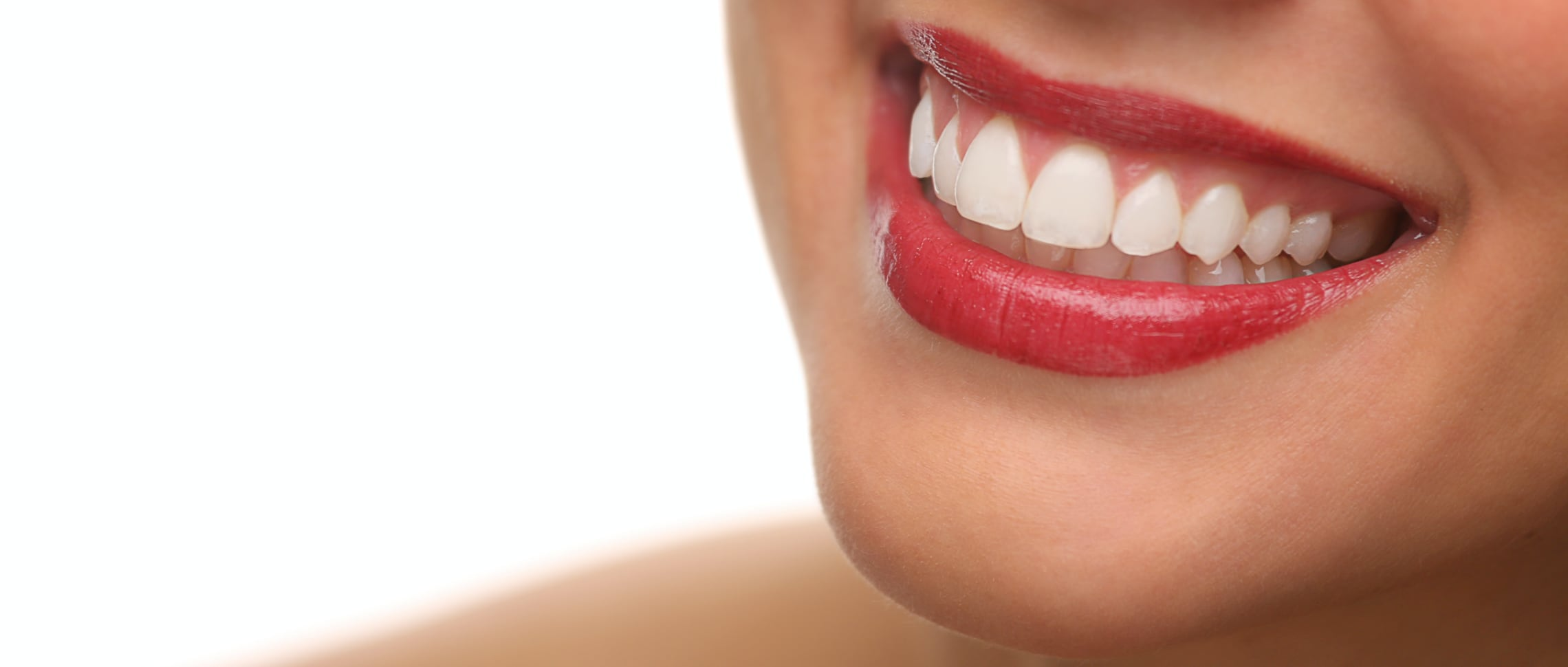 tandblekning-bra-pris-västerås-tänder-leende